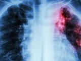 Bebida para limpiar los pulmones
