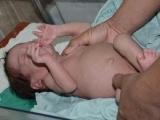 Cuba comenzó estudio piloto para detección de fibrosis quística